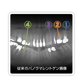 歯科用CT解説「レントゲン画像」